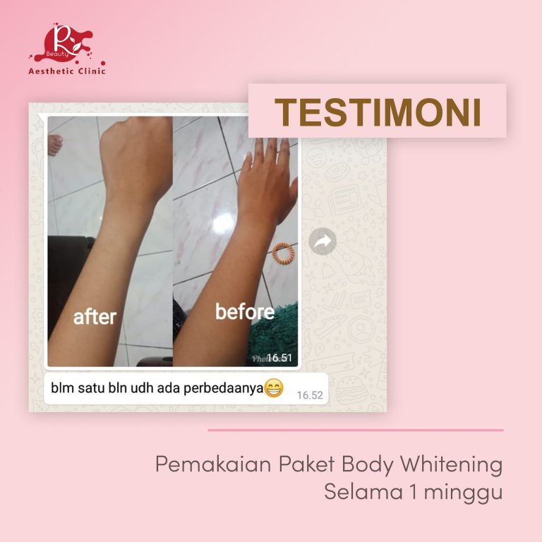 TESTIMONI BODY WHITENING3