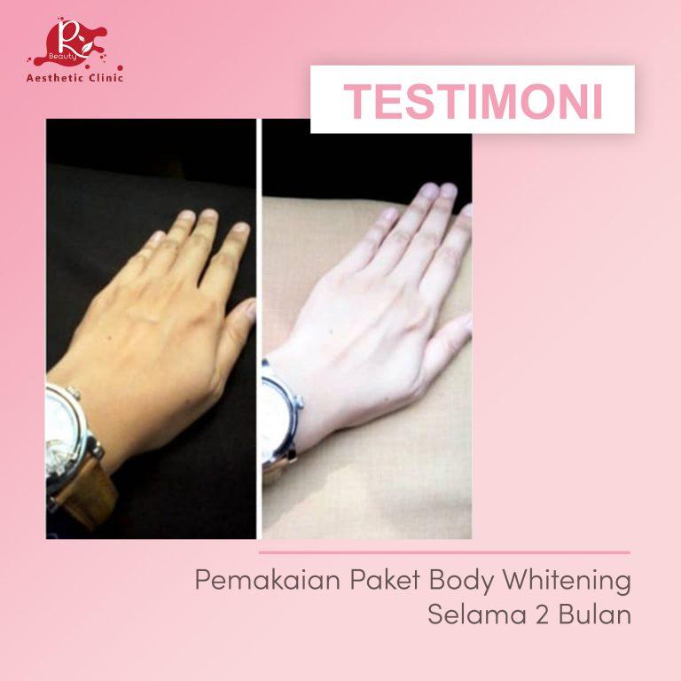 TESTIMONI BODY WHITENING5